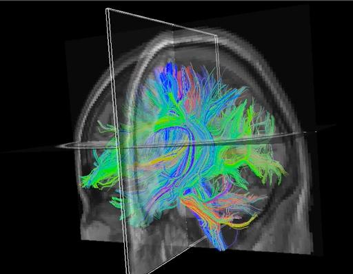 3D-dyslexic-brain