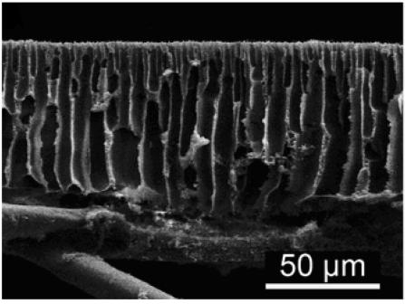Microscoopfoto van de binnenkant van een membraan.